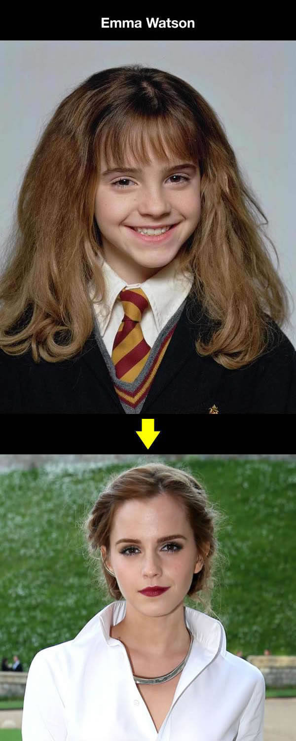 Awkward Kids Who Grew Up to Be Sexy Successful Celebs