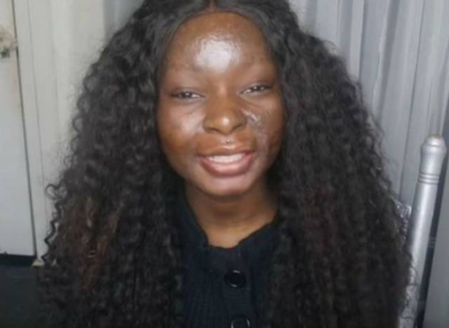 It May Seem Unbelievable But This Woman Has Burn Scars All Over Her Face