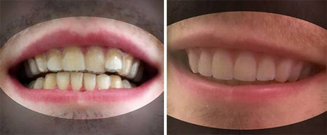 Guy 3D Prints His Own Braces Instead Of Paying Thousands Of Dollars