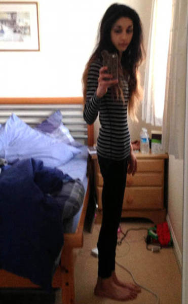 Anorexic girl getting fucked
