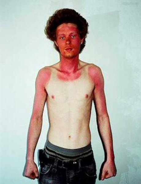 Examples When People Forgot They Can Actually Get Sunburns If They Don