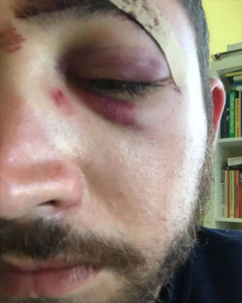 Guy Gets Punched In The Face Because He Looks Like Shia Labeouf