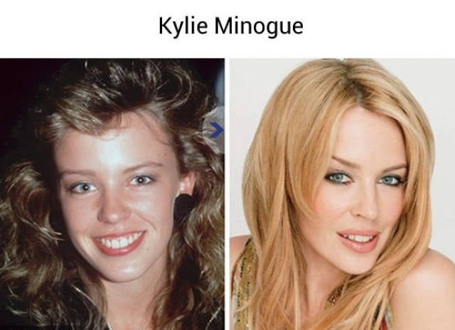 Celebrities Before They Became Famous