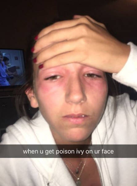 Poor Girl Got Poison Ivy In Her Eyes But Could Take It All With Humor