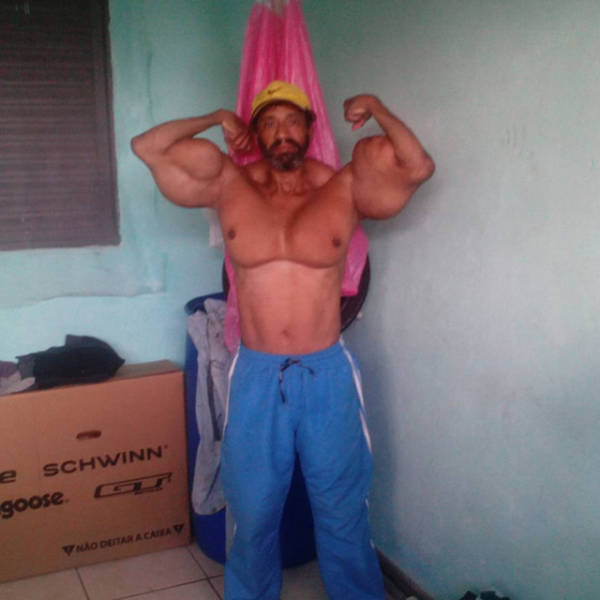Another Synthol Freak Who Will Make You Cringe