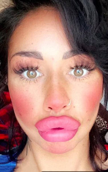 This Mum Has Already Huge Lips But She Wants Them Even Bigger
