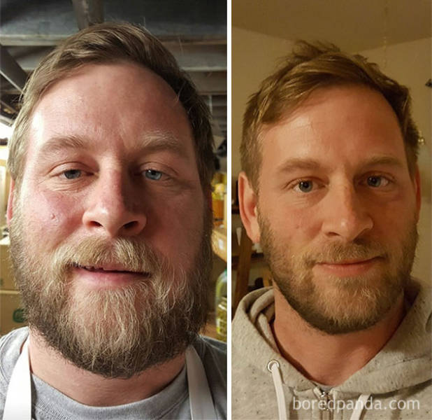 Staggering Physical Transformations Of Heavy Drinkers After They Gave Up Alcohol