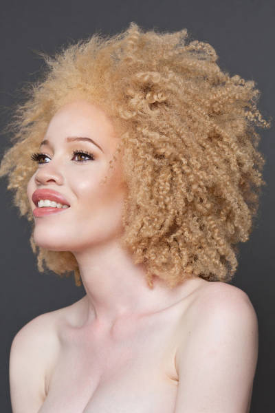 These Beautiful Albino People Are Simply Breathtaking